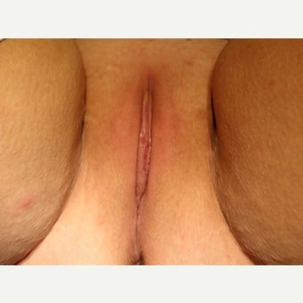 25-34 year old woman treated with Labiaplasty after 2079033