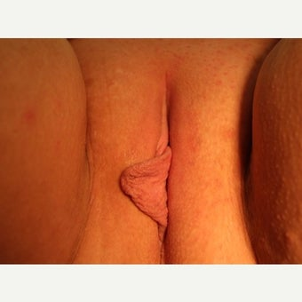 25-34 year old woman treated with Labiaplasty before 2079033