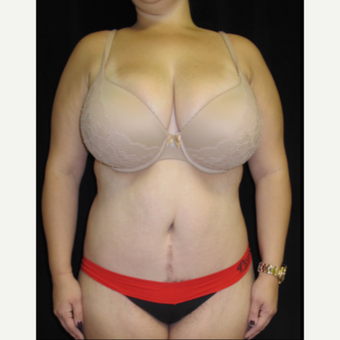 25-34 year old woman treated with Tummy Tuck Revision after 2848165