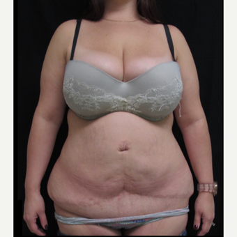 25-34 year old woman treated with Tummy Tuck Revision before 2848165