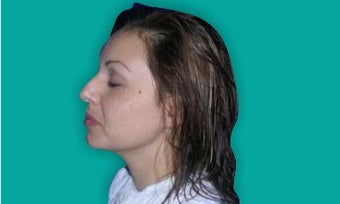 35-44 year old woman treated with Rhinoplasty before 3247537
