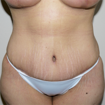 35-44 year old woman treated with Tummy Tuck after 3095828