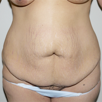 35-44 year old woman treated with Tummy Tuck before 3095828