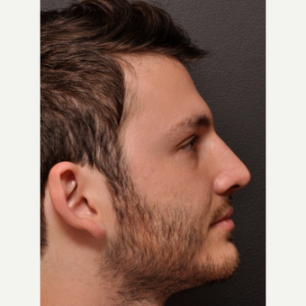 Functional Rhinoplasty with Subtle External Changes after 3645113