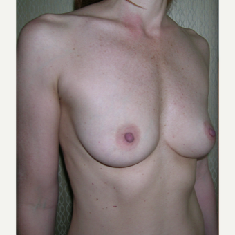 18-24 year old woman treated with Breast Augmentation before 3184645