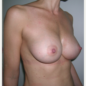 18-24 year old woman treated with Breast Augmentation after 3184645