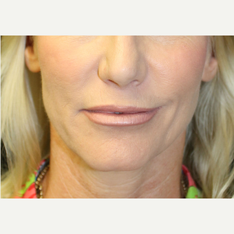 35-44 year old woman treated with Lip Implants after 3741785