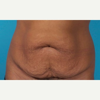 43 Year Old Woman Treated With Painless/Drainless Abdominoplasty - 5 Months Post-Op before 2227561