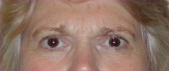 Blepharoplasty after 201521