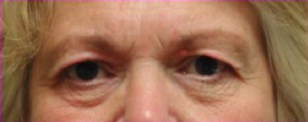 Blepharoplasty before 201521
