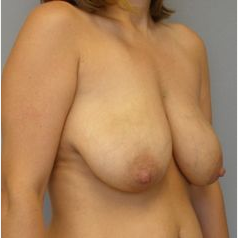 35-44 year old woman treated with Breast Lift with Implants before 3122395