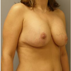 35-44 year old woman treated with Breast Lift with Implants after 3122395