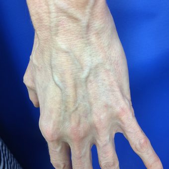 55-64 year old woman treated with Vein Treatment before 3079346