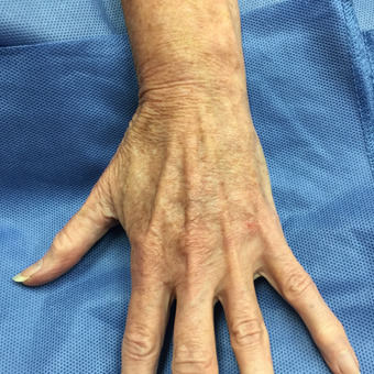 55-64 year old woman treated with Vein Treatment after 3079346