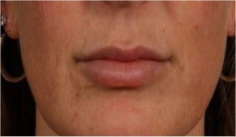 44 year old female with thin lips after 766102