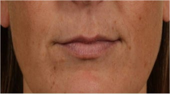 44 year old female with thin lips before 766102