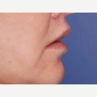 45-54 year old woman treated with Lip Lift after 3625196