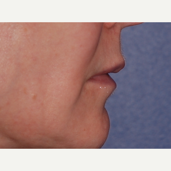 45-54 year old woman treated with Lip Lift before 3625196