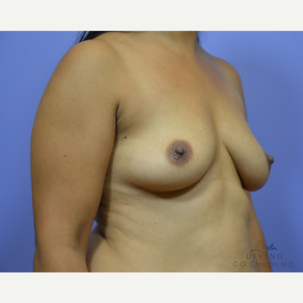 25-34 year old woman treated with Breast Augmentation before 3386447