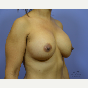25-34 year old woman treated with Breast Augmentation after 3386447