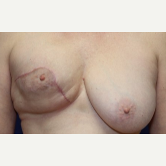 58 year old woman with Breast Reconstruction before 3076232