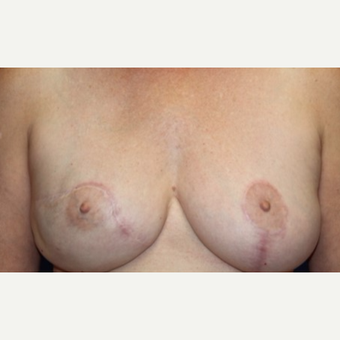 58 year old woman with Breast Reconstruction after 3076232