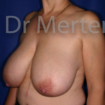 Breast Reduction before 3681199