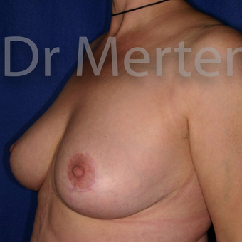 Breast Reduction after 3681199
