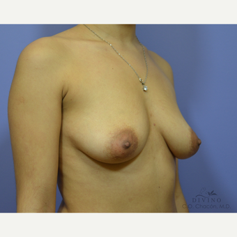 25-34 year old woman treated with Breast Augmentation before 3386433
