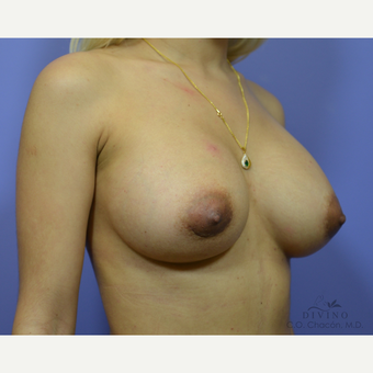 25-34 year old woman treated with Breast Augmentation after 3386433