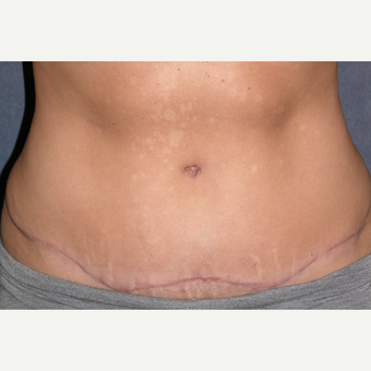 35-44 year old woman treated with Tummy Tuck & Liposuction to Hips after 3453650