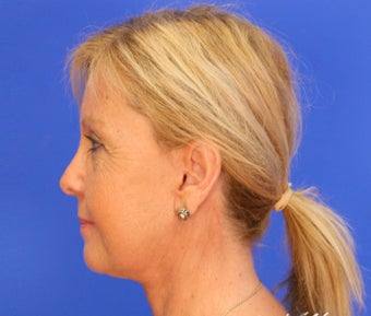 45-54 year old woman treated with Facelift after 3499936