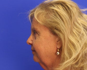 45-54 year old woman treated with Facelift before 3499936