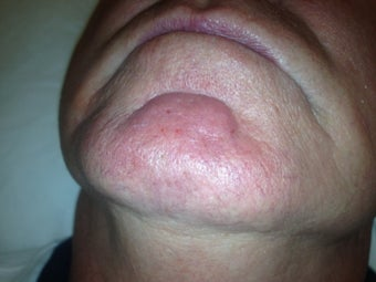 66 yo male with chin veins after 984586