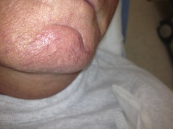 66 yo male with chin veins before 984586