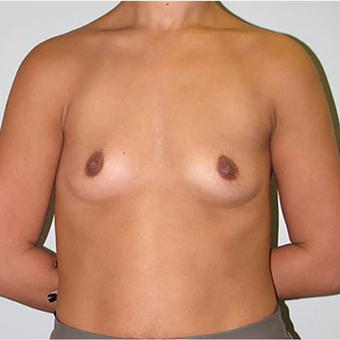 25-34 year old woman treated with Breast Augmentation before 3203102