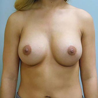 25-34 year old woman treated with Breast Augmentation after 3203102