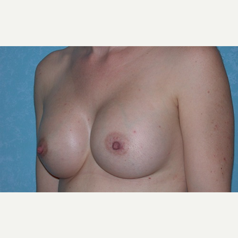 35-44 year old woman treated with Breast Augmentation after 3732945