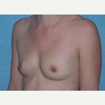 35-44 year old woman treated with Breast Augmentation before 3732945