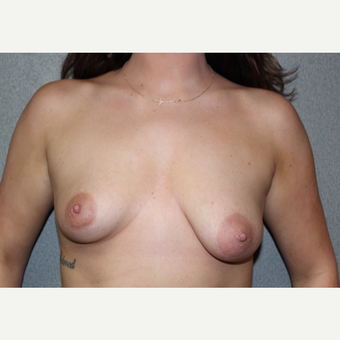 Breast Augmentation with lifting and skin excision (Asymmetry Correction) before 3366380