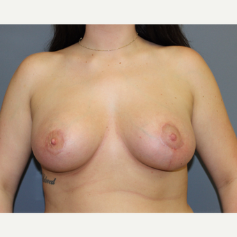 Breast Augmentation with lifting and skin excision (Asymmetry Correction) after 3366380