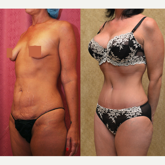 35-44 year old woman treated with Tummy Tuck after 3312089