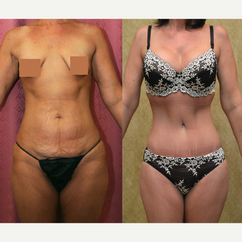 35-44 year old woman treated with Tummy Tuck before 3312089
