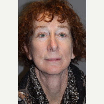 55-64 year old woman treated with Facelift after 3147929