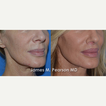 45-54 year old woman treated with Lip Lift before 3117318