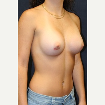 21 year old woman treated with Mentor Breast Implants after 3695834