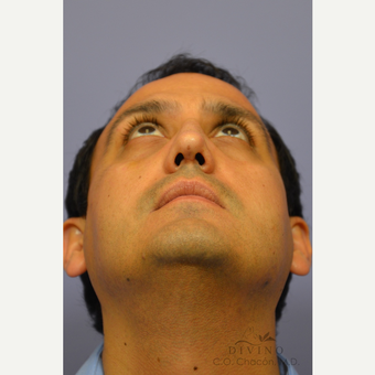 35-44 year old man treated with Rhinoplasty after 3391977
