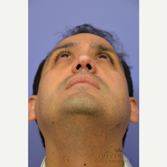 35-44 year old man treated with Rhinoplasty before 3391977