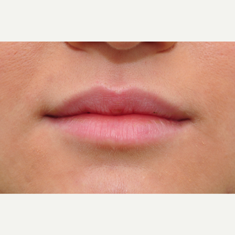 18-24 year old woman treated with Lip Augmentation before 3122382