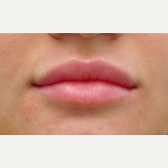 18-24 year old woman treated with Lip Augmentation after 3122382